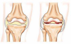 Як діагностувати і лікувати деформуючий остеоартроз?