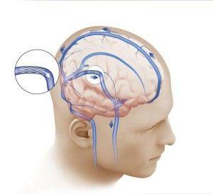 мікроциркуляція спинномозкової рідини