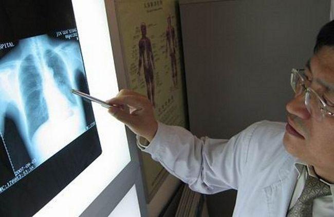 Діагностика легенів