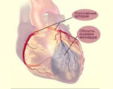 Діагностика при інфаркті міокарда: клінічні та екг ознаки, фото з розшифровкою