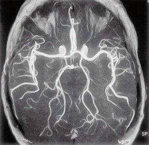 Діагностика судин головного мозку за допомогою ангіографії