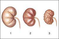 Хронічна хвороба нирок