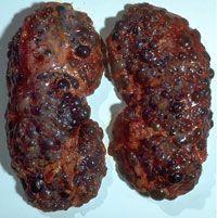 Термін хронічна хвороба нирок