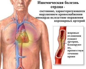 Іхс: симптоми, види, діагностичні заходи і лікування