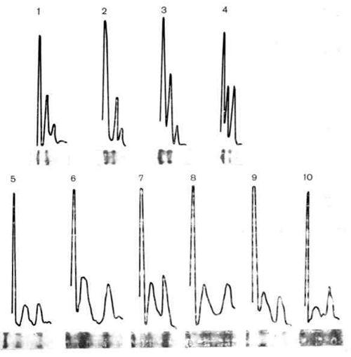 Ізоформи і загальна активність гексокінази в цитоплазмі інтактних клітин фек при культивуванні