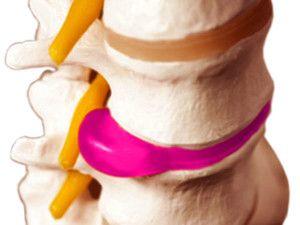 Як діагностувати і лікувати протрузию дисків шийного відділу хребта