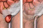 Які симптоми післяопераційної грижі?