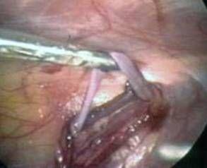 Етапи операції при варикоцеле