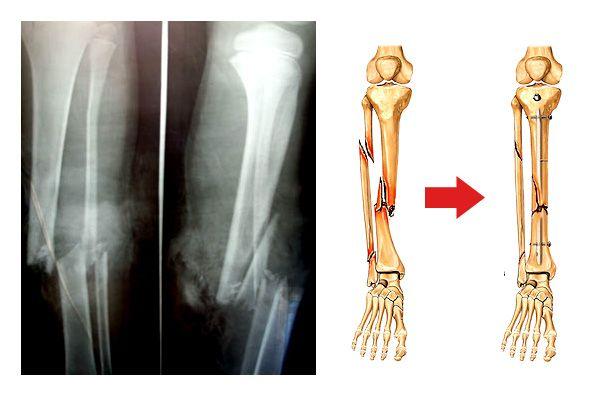 Перелом гомілки - види перелому, лікування та реабілітація